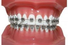 NEBDN - Certificate in Orthodontic Nursing